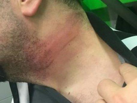 За избиение судьи канадского хоккеиста отстранили от игр