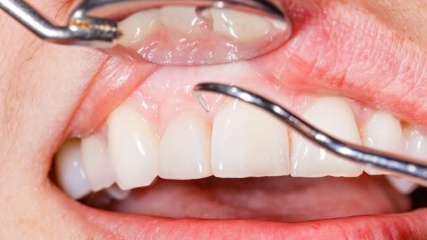 В Новой Шотландии заботятся о детских зубах