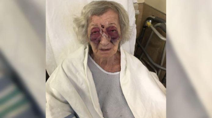 Сумасшедший избил пережившую Холокост женщину в такси
