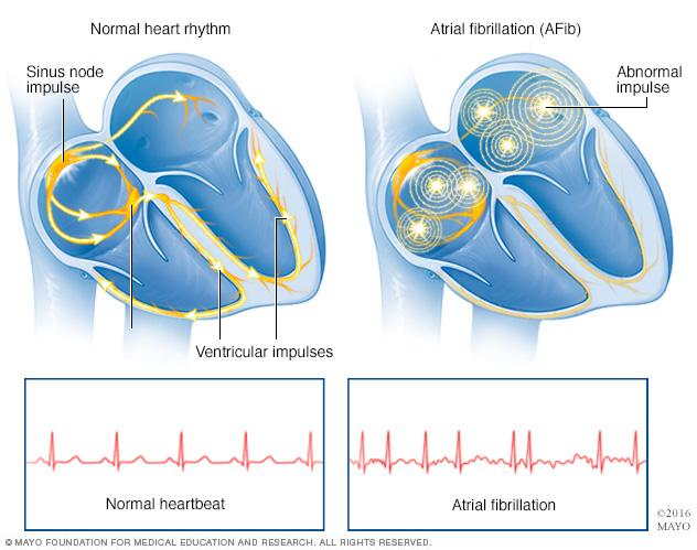 Канадские медики объясняют причину сердечной аритмии
