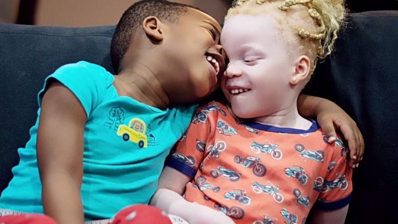 У канадских близнецов разный цвет кожи